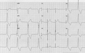 «Necesito imágenes de electrocardiogramas patológicos y en google encuentro mucho pero no sé si puedo usarlas. Quería saber si conocéis alguna página donde encuentre estos trazados». (17/01/2020)