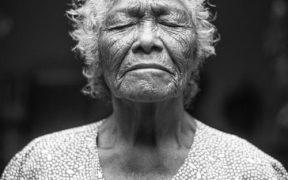 """""""Frecuencia de la disfagia en el paciente anciano, etiología, diagnóstico, clínica, signos y síntomas."""""""